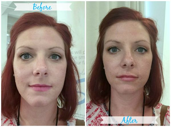 Getting Gorgeous Lips with Restylane® Silk - Brittany Estes